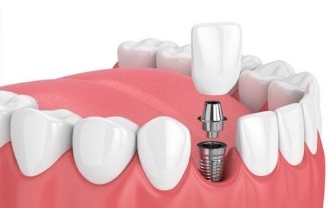 tratamiento de implantologia dental en navalcarnero