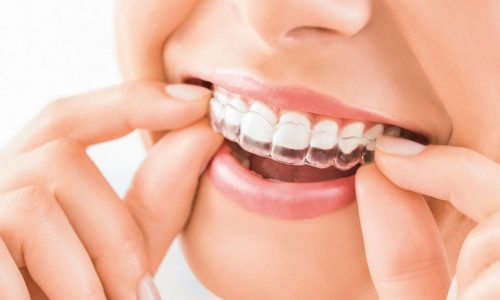 ortodoncia-invisible-02-reduit-1024x576